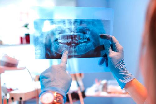 Zahnarzt Luzern Büttner Diagnose